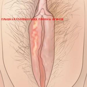 Прыщи на большой и малой половых губах: внутренние, подкожные фото