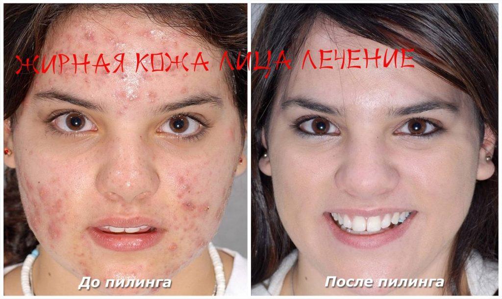 Как вылечить жирную кожу лица