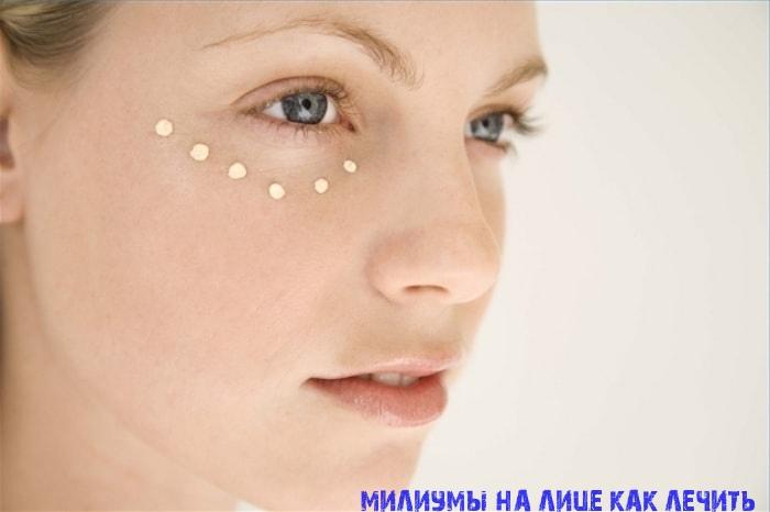 Милиумы на лице лечение и причины