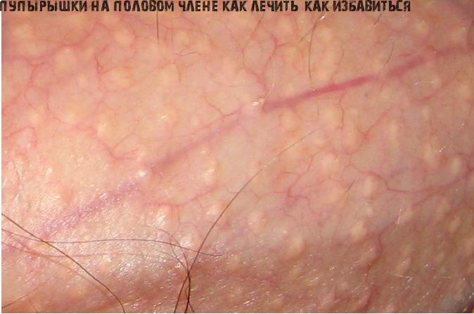 Появились белые пупырышки на коже или головке члена