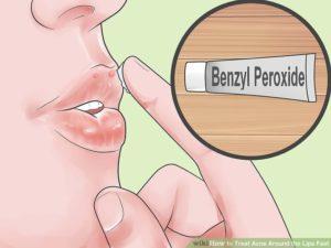 Пероксид бензоила