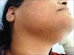Фолликулярный гиперкератоз кожи лица лечение, причины фото