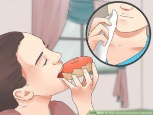 Прыщи на губах после еды