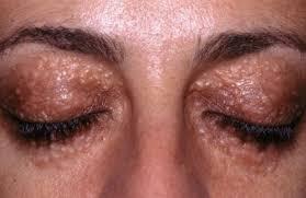 Прыщи на глазу на нижнем или верхнем веке, причины, лечение фото