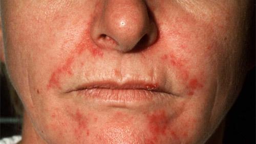 Стероидные угри и дерматит на лице лечение, фото фото