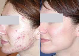 Узелково кистозные акне лечение, причины, фото фото