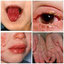 Болезнь кавасаки у детей и взрослых симптомы, фото фото