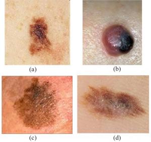 Карцинома базальных клеток на теле