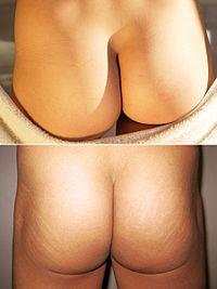 Прыщи между ягодицами как лечить у женщин и мужчин фото