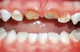 Абцесс на зубах у ребенка