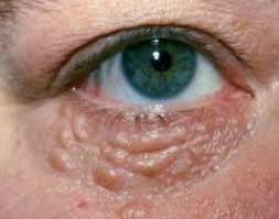 Белые точки под глазами причины и лечение