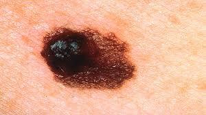 Меланома на коже тела и лица