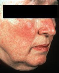 Прыщи на лице у женщин после 50 лет причины фото