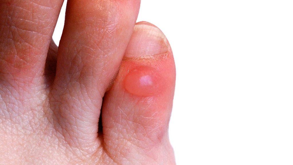 Прыщ между пальцами ног как лечить? фото