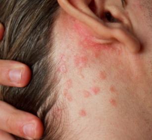 Прыщи за ушами и на шее причины и лечение у взрослых женщин фото