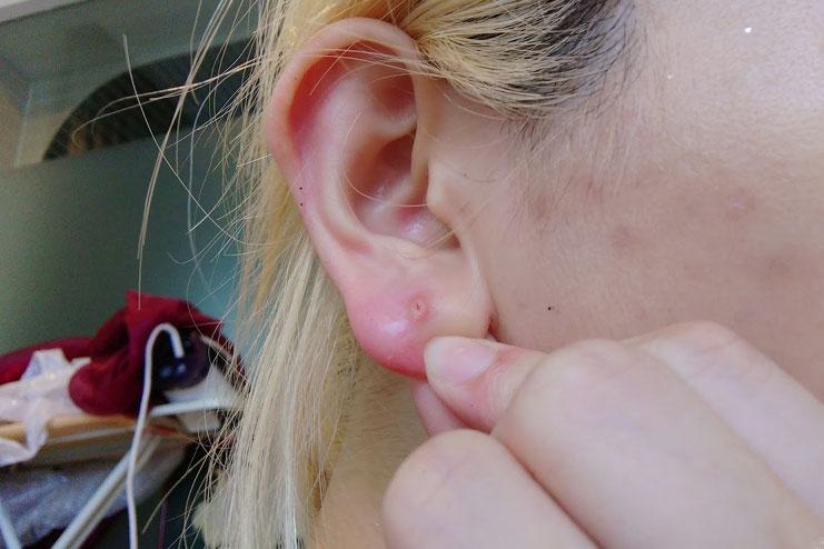 Прыщ на мочке уха причины и лечение