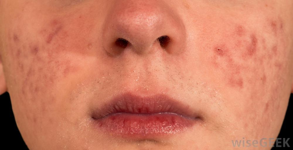 Прыщи без гноя на лице: большие, красные, подкожные, не проходят фото