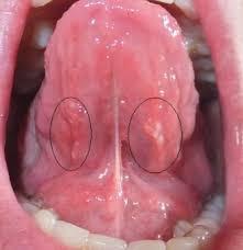Прыщ под языком причины и лечение