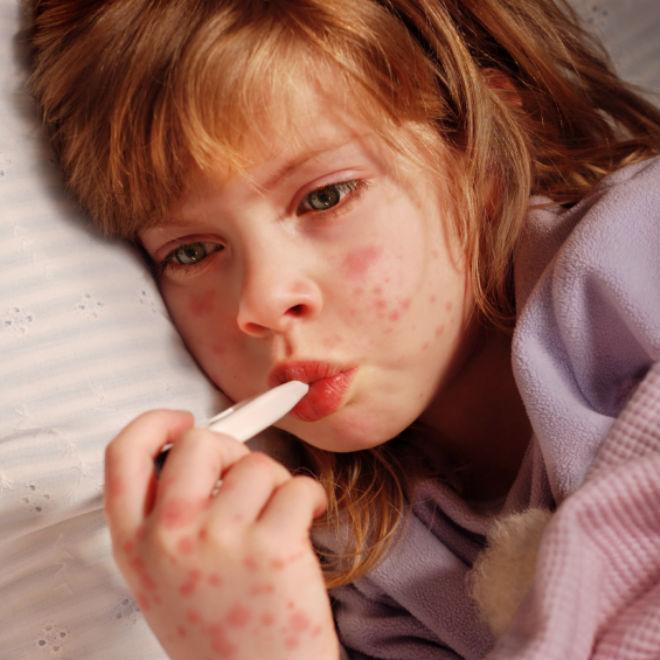 Прыщи у ребенка 4, 5, 6 лет на лице, попе, щеках, носу фото