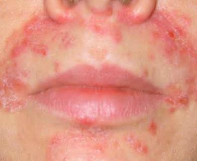 Прыщи вокруг носа: причины и лечение