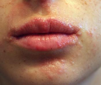Прыщи вокруг рта и на подбородке причины, как лечить фото